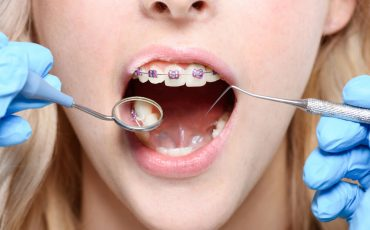 What to Do for a Toothache with Braces